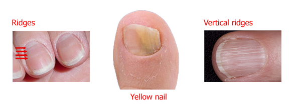 9 Nail Problems You Shouldn't Ignore - Men's Health