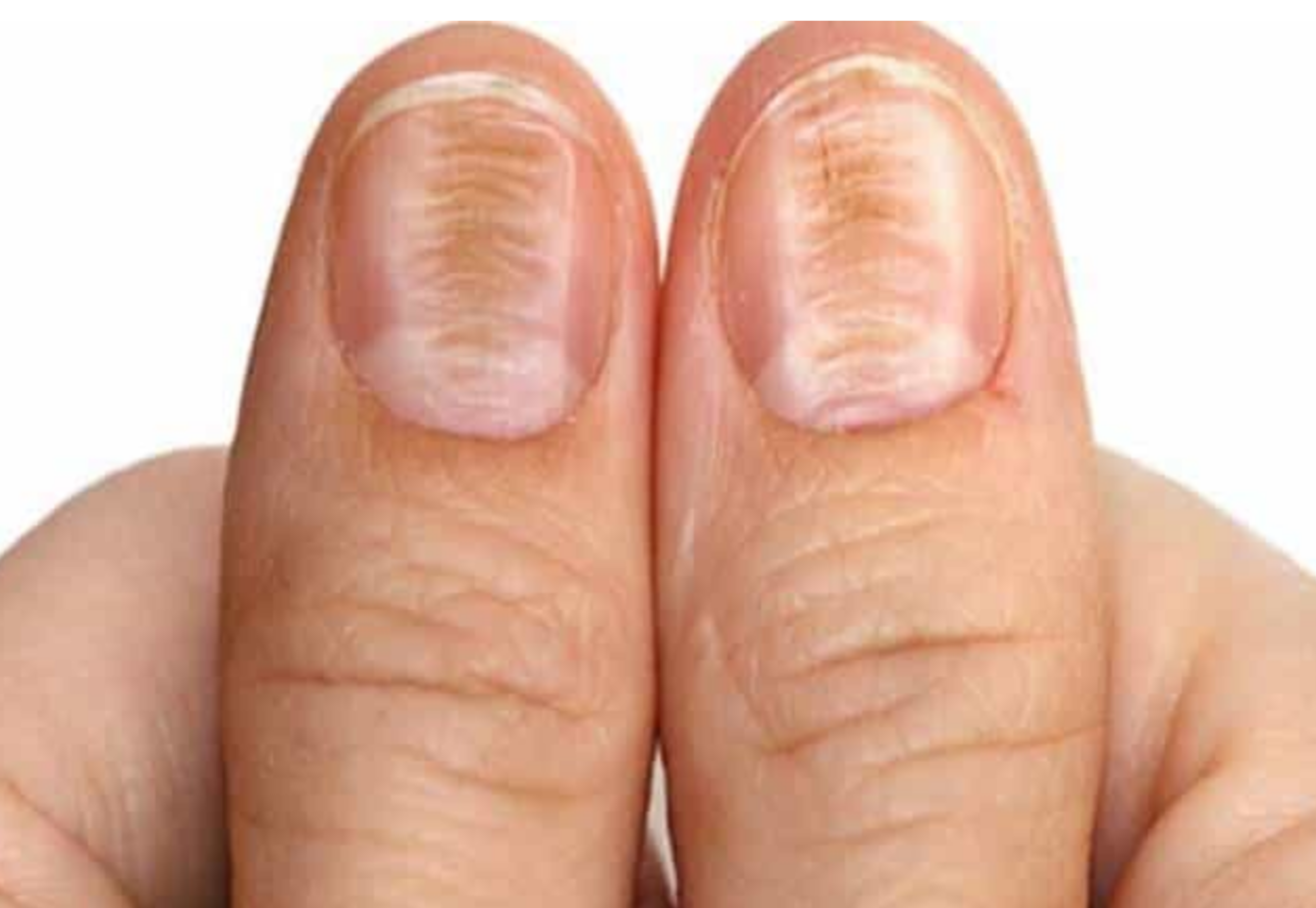 Horizontal Nail Ridges Can Indicate B1 Deficiency