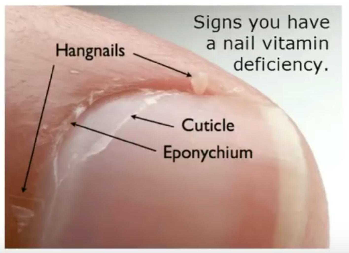 2018 - nails and biotin deficiency | H Pylori Symptoms