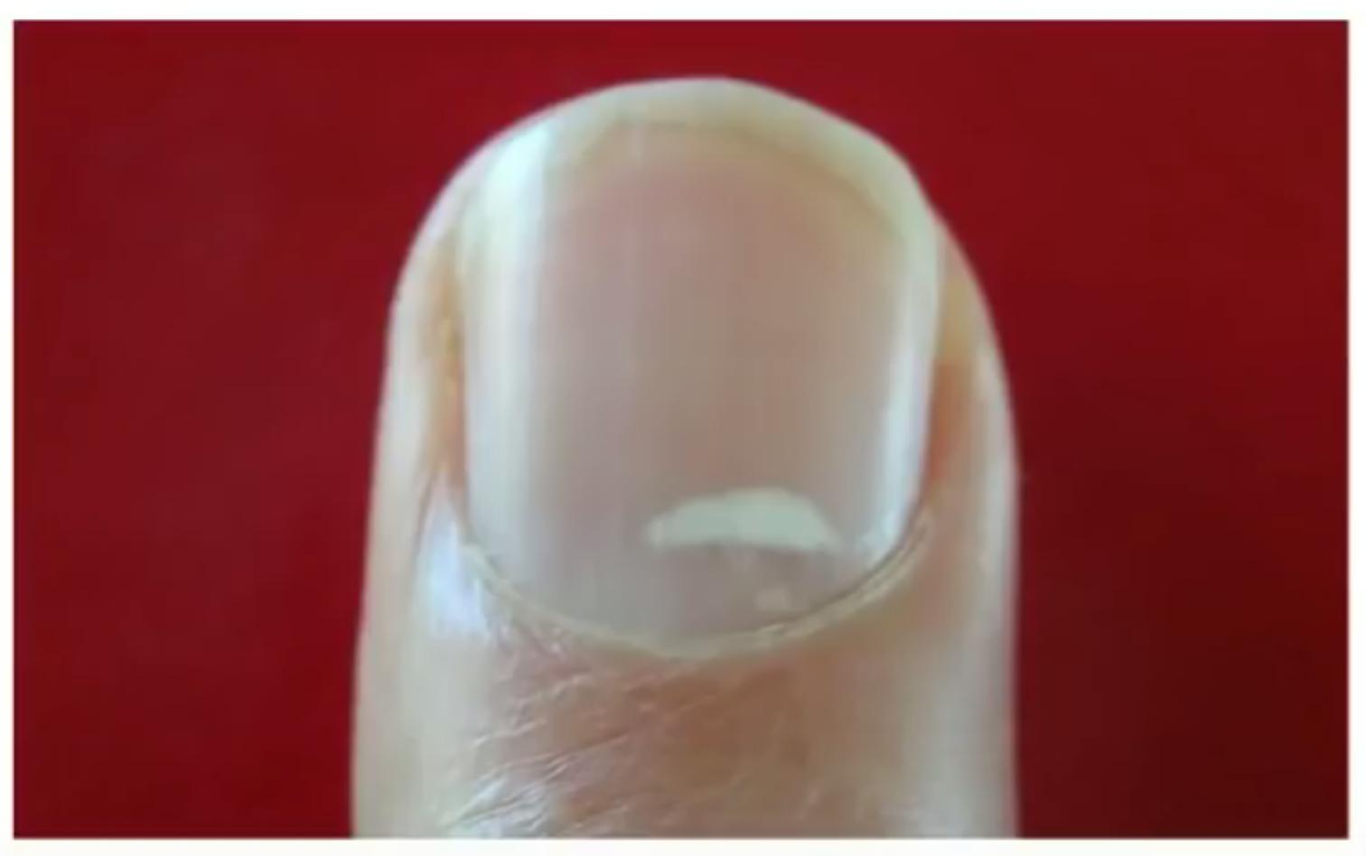 2018 - nails and zinc deficiency | H Pylori Symptoms
